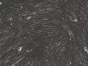 Fibroblasts from the Cell Culture Core