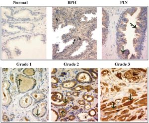 Microscopic images of cancerous prostate cells, showing Normal, BPH, PIN, tumor Grade 1, Grade 2, Grade 3