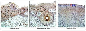 Microscopic images of normal skin, non-lesional skin, and psoriatic skin.